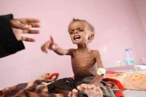 اليمن يعلن وفاة امرأة و6 مواليد كل ساعتين جراء العدوان السعودي